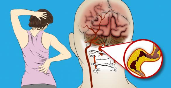 6 أعراض للسكتة الدماغية يجب أن تنتبه إليها النساء